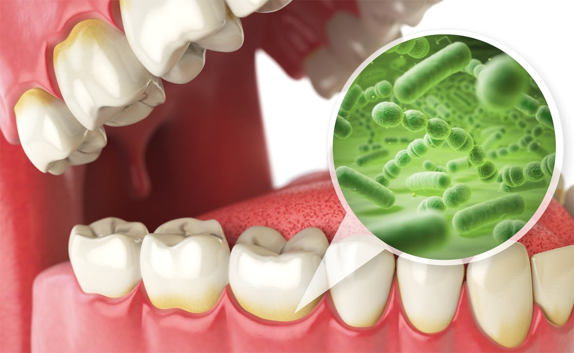 Browns-Plains-dentist-Oral-bacteria -affect-the-health