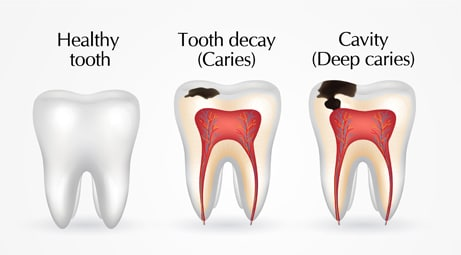 Are dental caries and cavities the same thing?